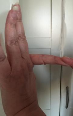 pekfingerbak